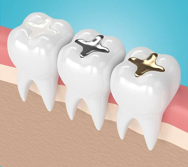 Swampscott Composite Fillings