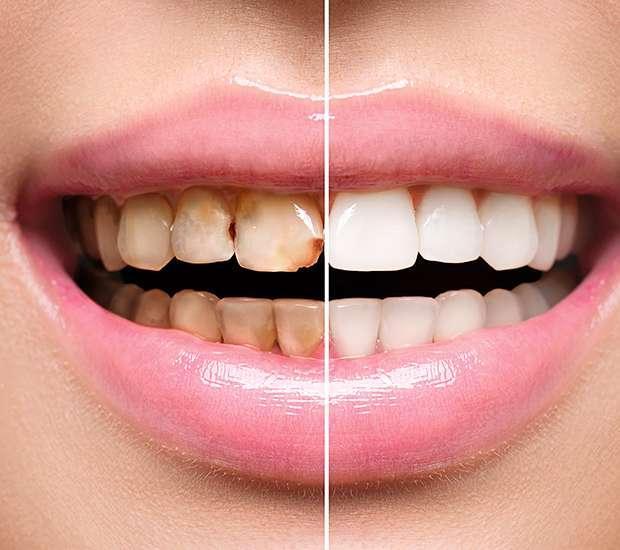 Swampscott Dental Implant Restoration