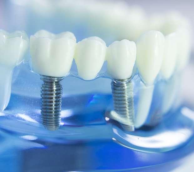 Swampscott Dental Implants
