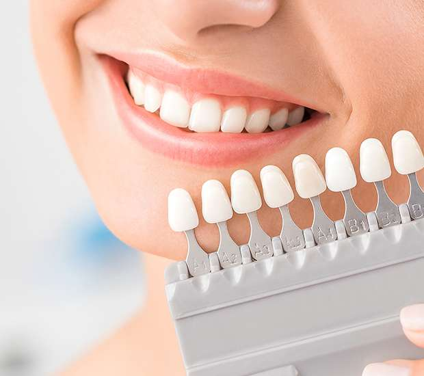 Swampscott Dental Veneers and Dental Laminates