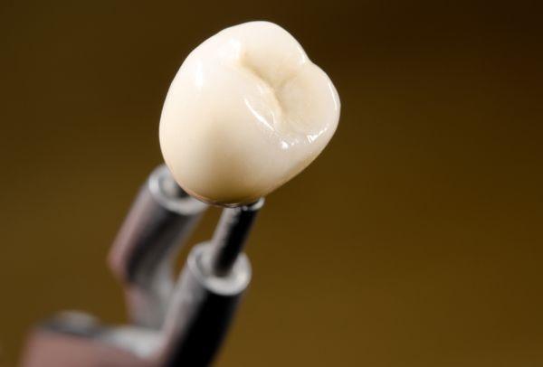 How Dental Crowns Can Help Poorly Shaped Teeth
