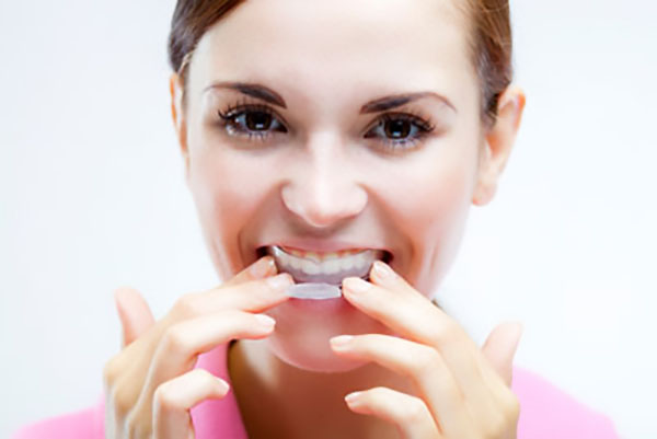 Get A Mouthguard From Your General Dentistry Practice To Prevent Tooth Wear