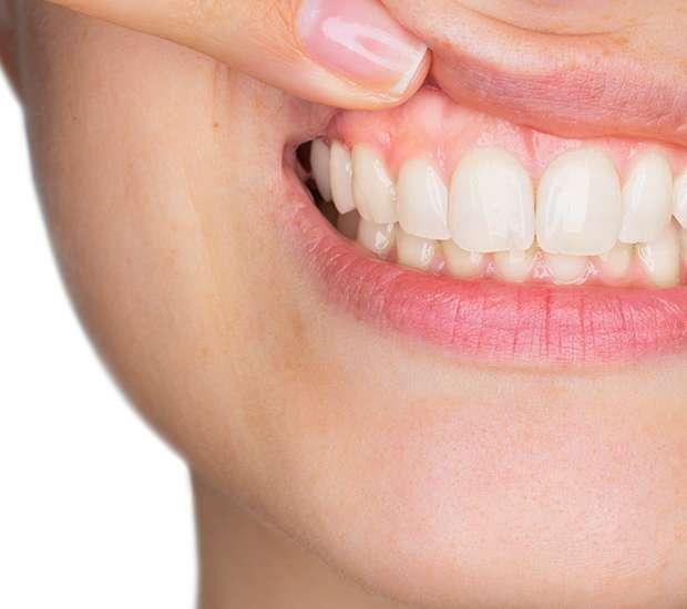 Swampscott Gum Disease