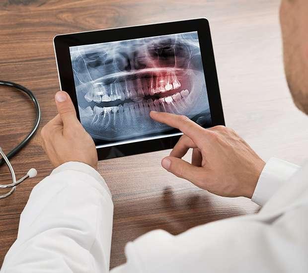 Swampscott Types of Dental Root Fractures